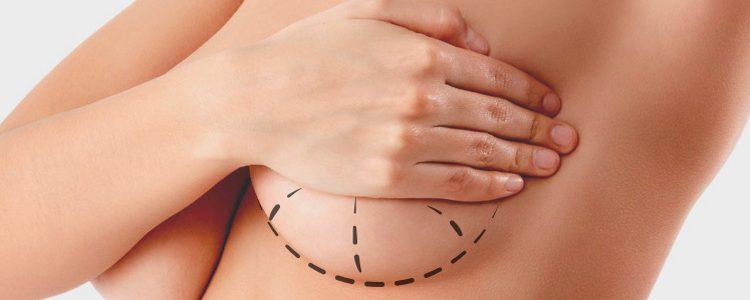 Elevación mamaria-mastopexia