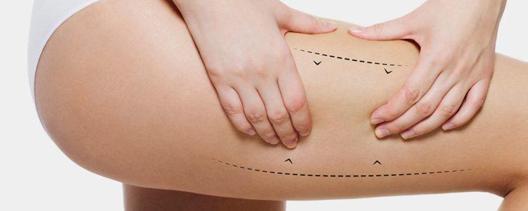 Lifting de muslos o clurofrancoplastia