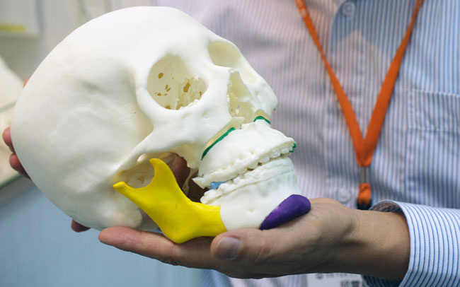 Reconstrucción de cabeza con impresiones 3D